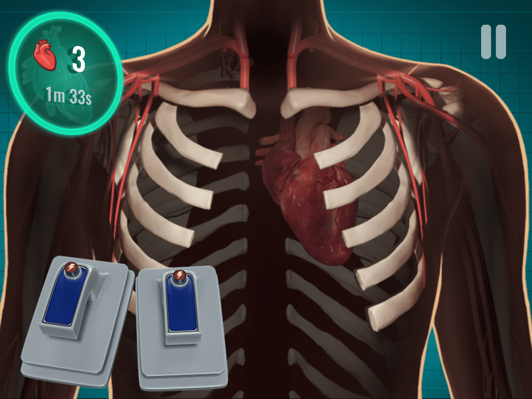 Screenshot of Android game, Operate Now: Hospital