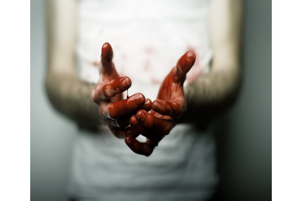 A man with bloody hands and clothes.