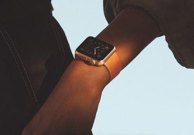An Apple Watch on a forearm